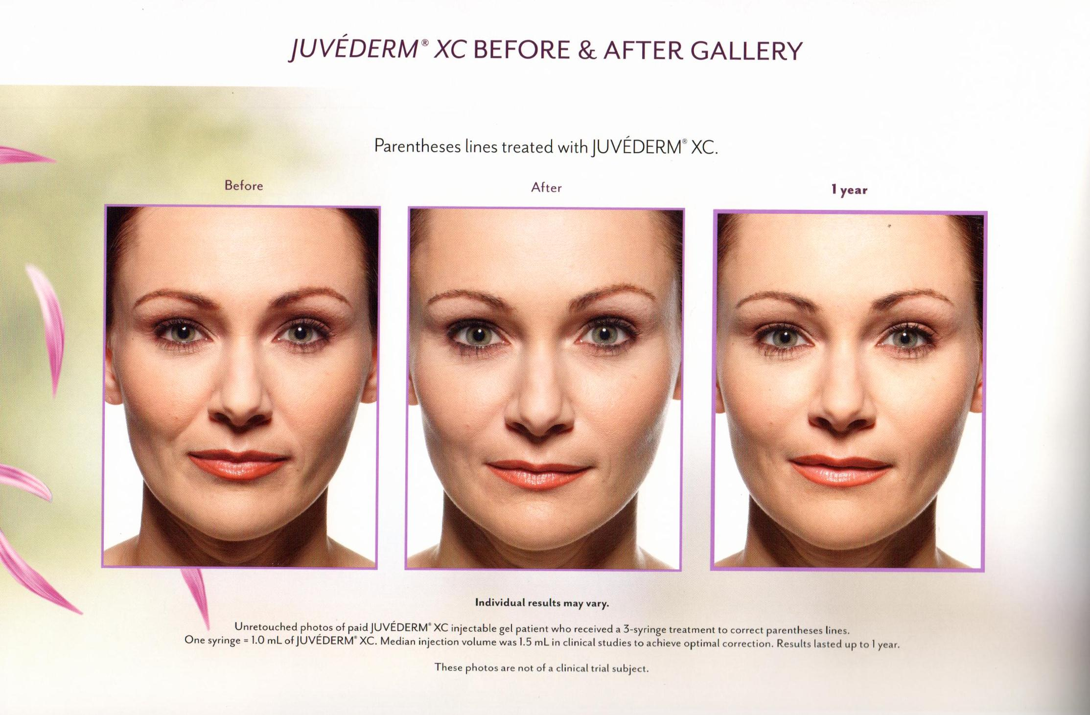 Anaheim Medical & Cosmetic Clinic - Fillers